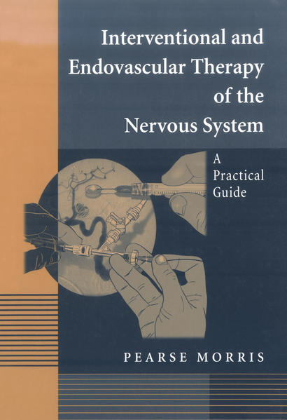 Interventional and Endovascular Therapy of the Nervous System - Coverbild