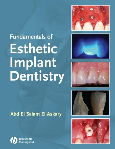 Fundamentals of Esthetic Implant Dentistry - Coverbild