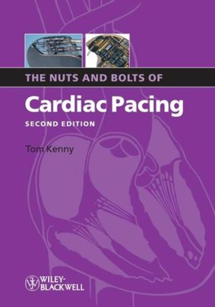 The Nuts and Bolts of Cardiac Pacing - Coverbild