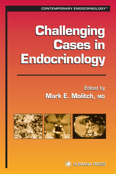 Challenging Cases in Endocrinology - Coverbild