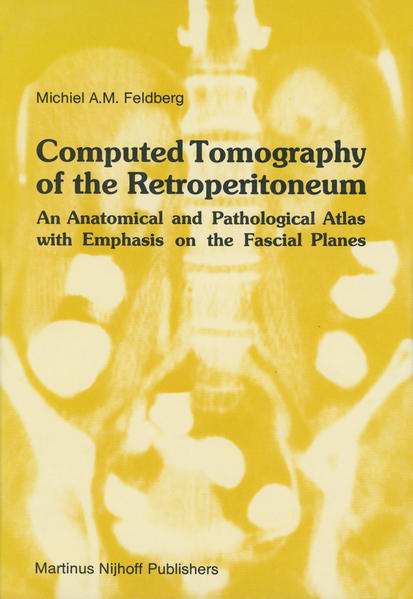 Computed Tomography of the Retroperitoneum - Coverbild