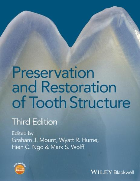Download PDF Kostenlos Preservation and Restoration of Tooth Structure