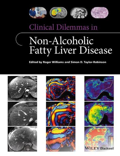 Clinical Dilemmas in Non-Alcoholic Fatty Liver Disease - Coverbild