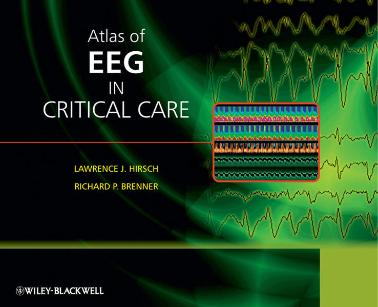 Kostenloser Download Atlas of EEG in Critical Care Epub