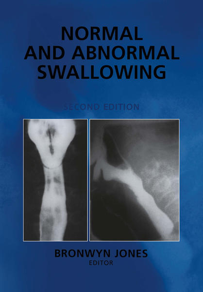 Normal and Abnormal Swallowing - Coverbild