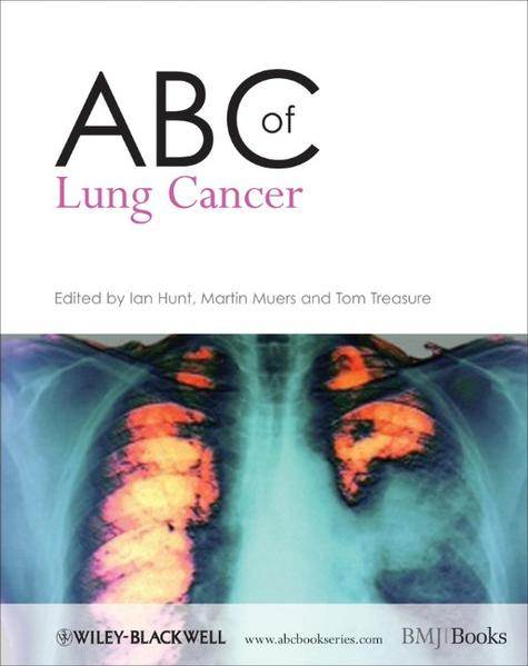 ABC of Lung Cancer - Coverbild