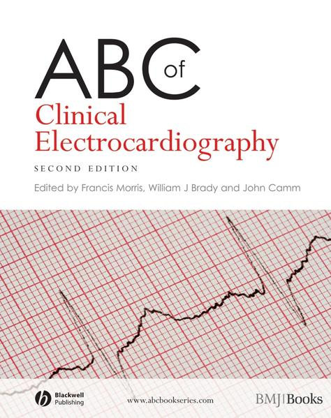 Kostenloser Download ABC of Clinical Electrocardiography PDF