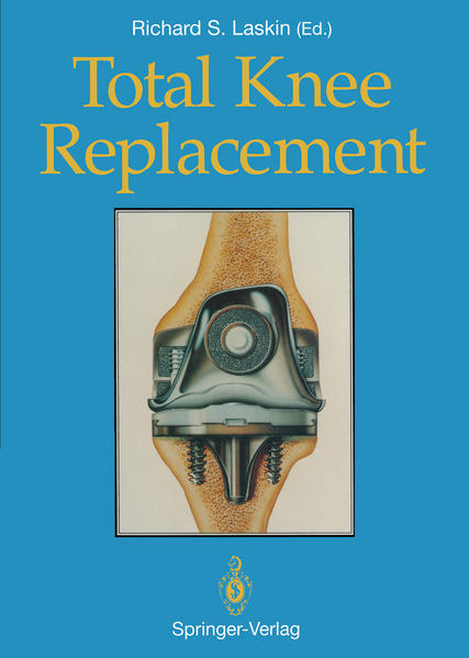 Total Knee Replacement - Coverbild