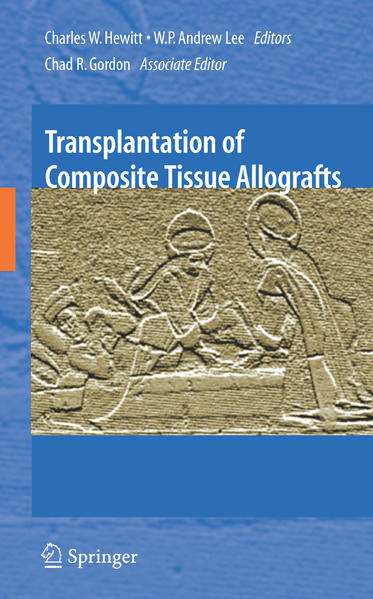 Transplantation of Composite Tissue Allografts - Coverbild