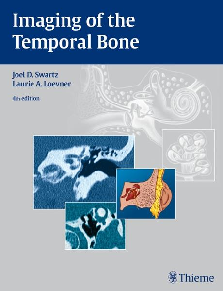 Imaging of the Temporal Bone - Coverbild