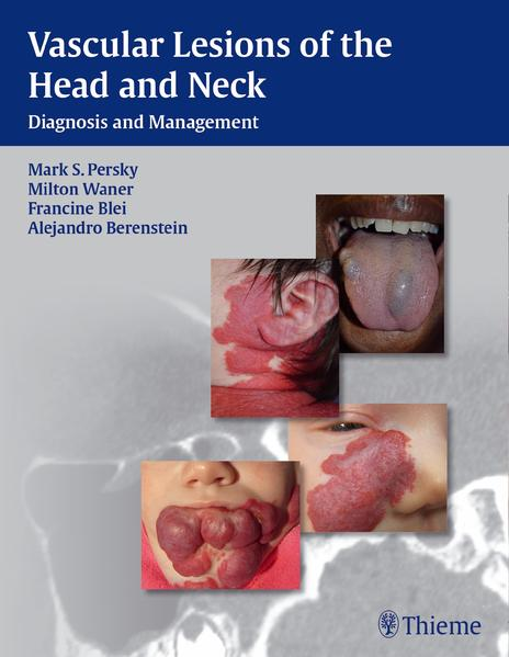 Vascular Lesions of the Head and Neck - Coverbild