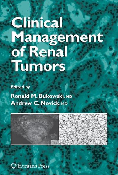 Clinical Management of Renal Tumors - Coverbild