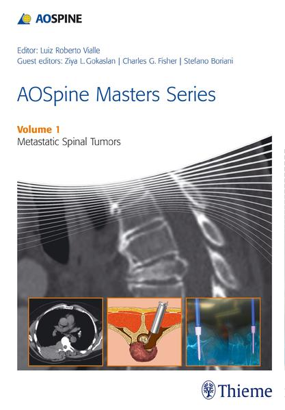 AOSpine Masters Series Volume 1: Metastatic Spinal Tumors - Coverbild