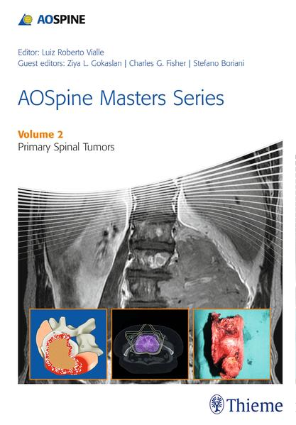 AOSpine Masters Series Volume 2: Primary Spinal Tumors - Coverbild