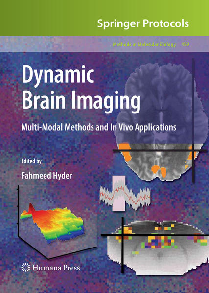 Dynamic Brain Imaging - Coverbild