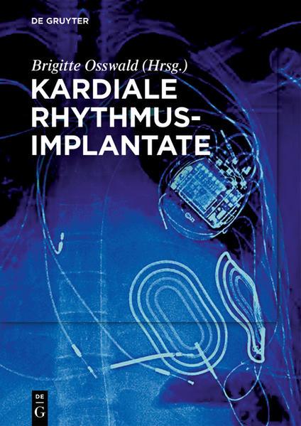 Kardiale Rhythmusimplantate - Coverbild