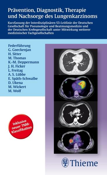 Prävention, Diagnostik, Therapie und Nachsorge des Lungenkarzinoms - Coverbild