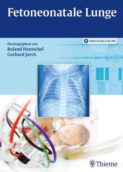 Kostenloser Download Fetoneonatale Lunge Epub