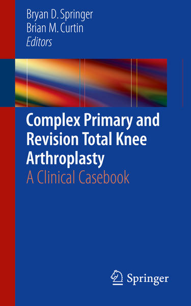 Complex Primary and Revision Total Knee Arthroplasty - Coverbild