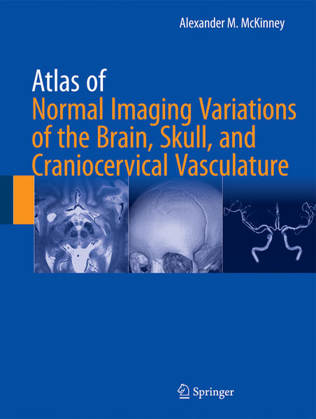 Atlas of Normal Imaging Variations of the Brain, Skull, and Craniocervical Vasculature  - Coverbild