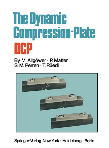 The Dynamic Compression Plate DCP - Coverbild