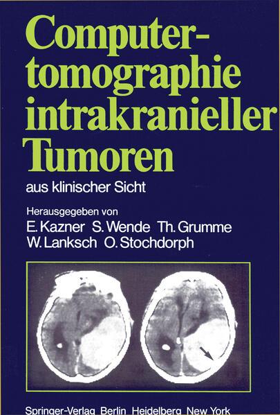 Computertomographie intrakranieller Tumoren aus klinischer Sicht - Coverbild