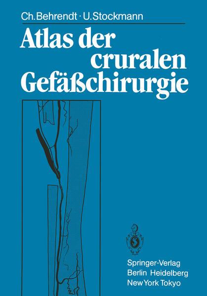 Atlas der cruralen Gefäßchirurgie - Coverbild