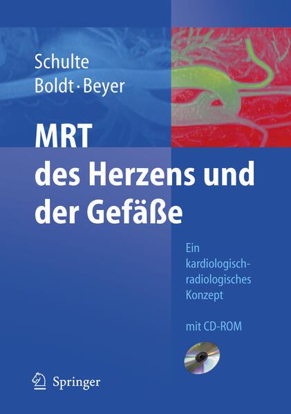 MRT des Herzens und der Gefäße - Coverbild
