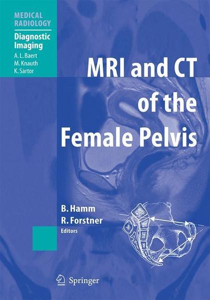 MRI and CT of the Female Pelvis - Coverbild