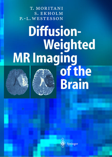 Diffusion-Weighted MR Imaging of the Brain - Coverbild