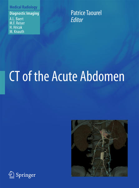 CT of the Acute Abdomen - Coverbild