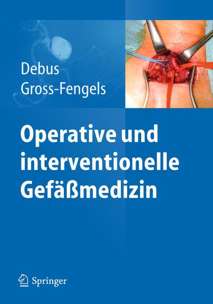 Operative und interventionelle Gefäßmedizin - Coverbild