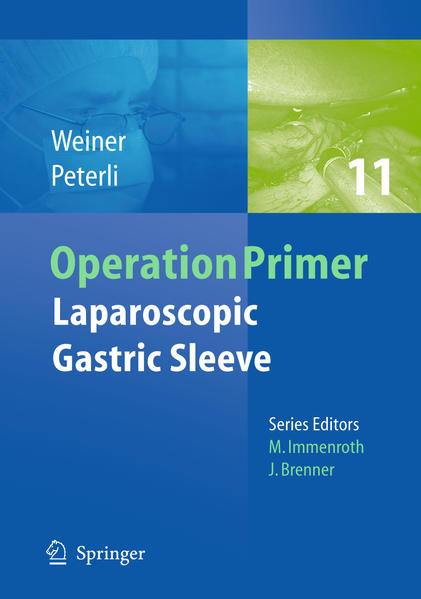 Laparoscopic Gastric Sleeve - Coverbild