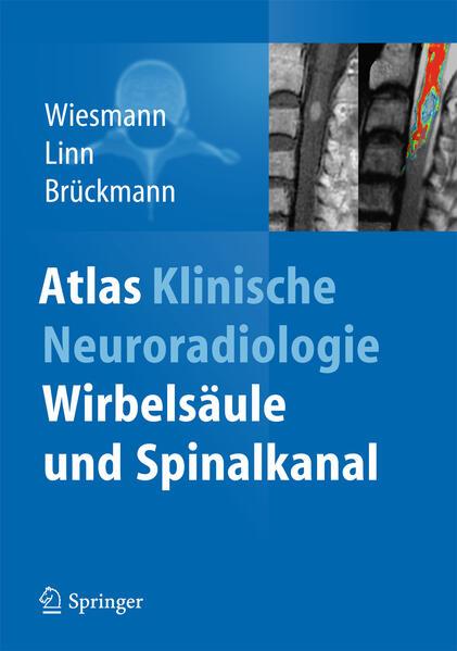 Atlas Klinische Neuroradiologie - Coverbild