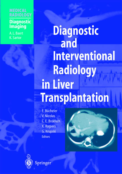 Diagnostic and Interventional Radiology in Liver Transplantation - Coverbild