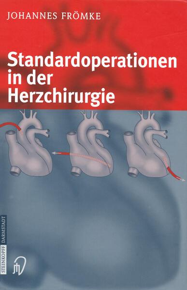 Standardoperationen in der Herzchirurgie - Coverbild