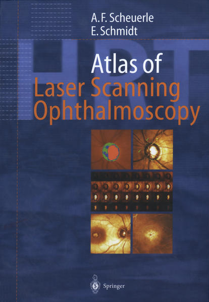 Atlas of Laser Scanning Ophthalmoscopy - Coverbild