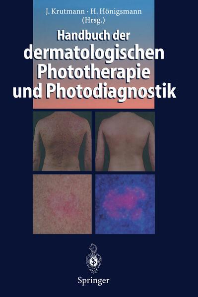 Handbuch der dermatologischen Phototherapie und Photodiagnostik - Coverbild