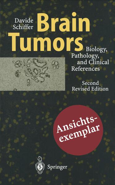 Brain Tumors - Coverbild