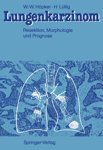 Lungenkarzinom - Coverbild