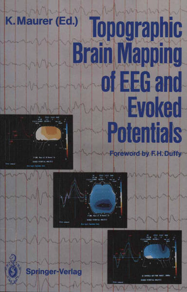 Topographic Brain Mapping of EEG and Evoked Potentials - Coverbild