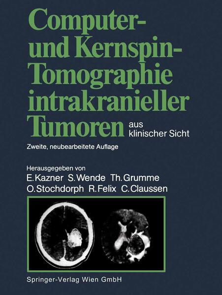 Computer- und Kernspin-Tomographie intrakranieller Tumoren aus klinischer Sicht - Coverbild