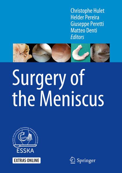 Surgery of the Meniscus - Coverbild