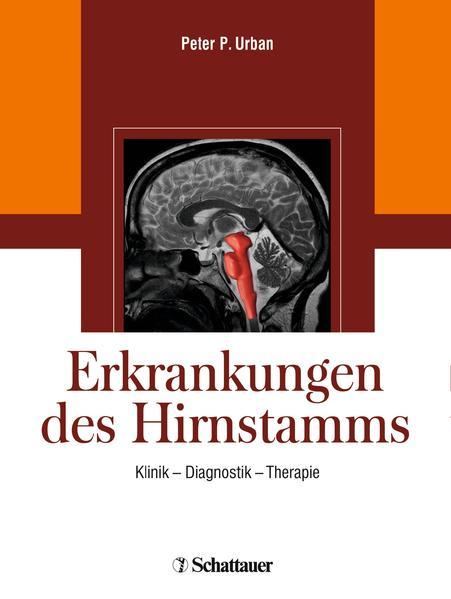 Erkrankungen des Hirnstamms - Coverbild
