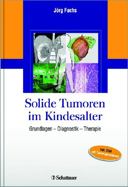 Solide Tumoren im Kindesalter - Coverbild