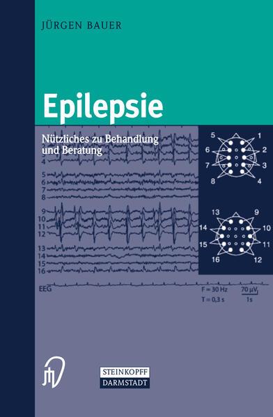 Epilepsie - Coverbild