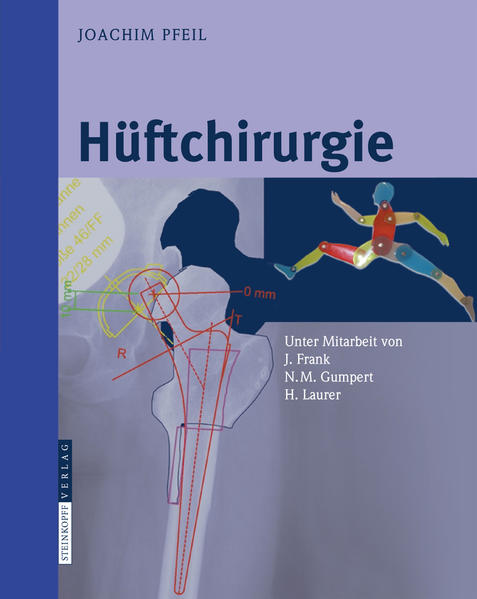Hüftchirurgie - Coverbild