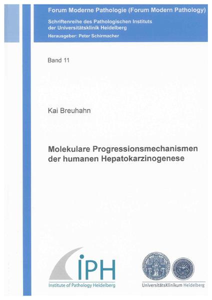 Molekulare Progressionsmechanismen der humanen Hepatokarzinogenese - Coverbild