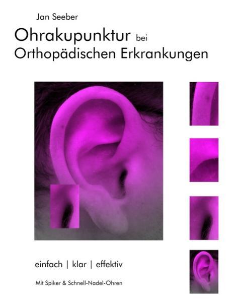Ohrakupunktur bei Orthopädischen Erkrankungen - Coverbild