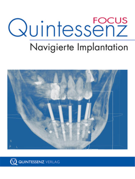 Quintessenz FOCUS Navigierte Implantation - Coverbild